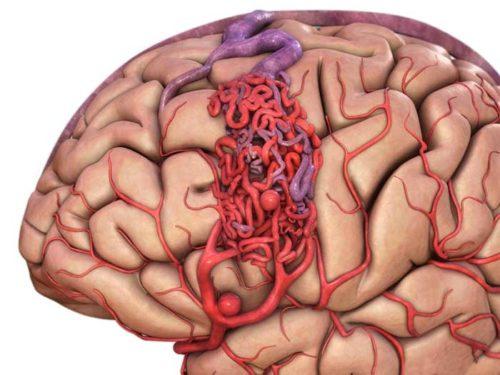 Мальформация сосудов головного мозга