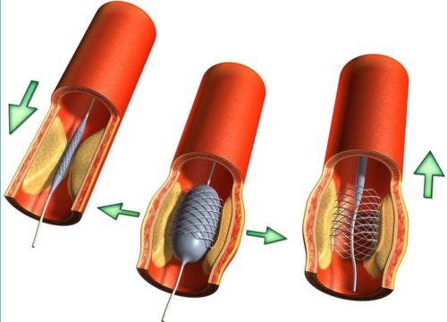 стенты для коронарных сосудов
