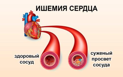 Церебральная ишемия