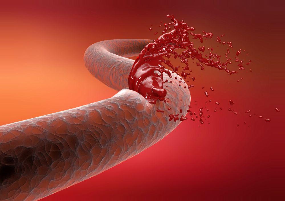 Кровотечение паренхиматозное