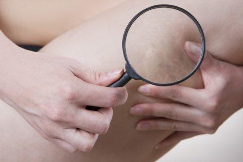 Как лечить варикоз в домашних условиях: эффективные методы лечения