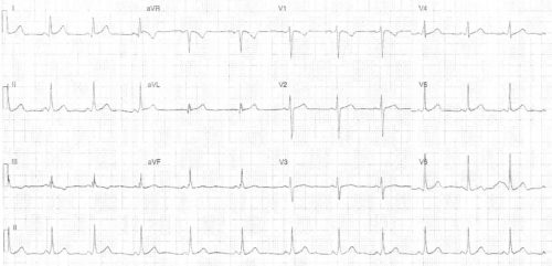 Синдром вольфа паркинсона уайта симптомы