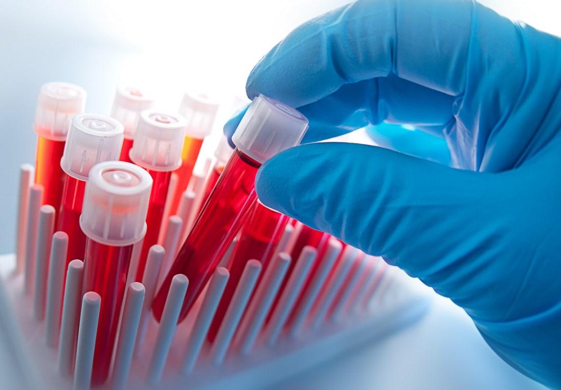 Анализ крови РПГА