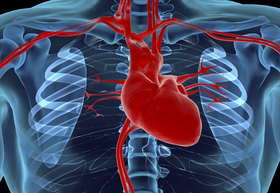 Дефект Межжелудочковой Перегородки Сердца
