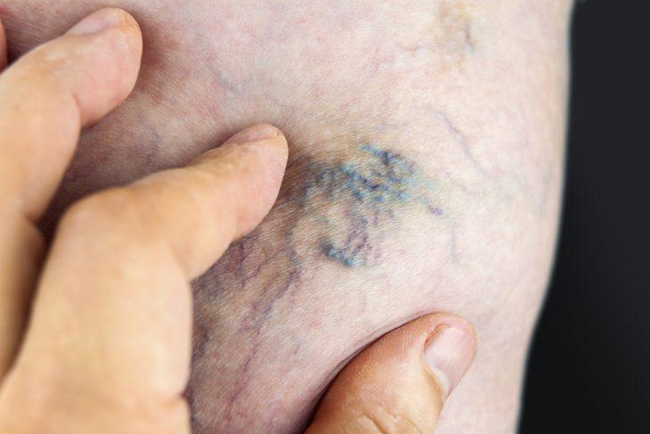 Лечение Тромба В Ноге