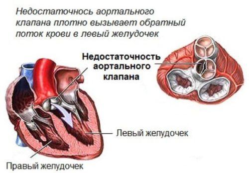 nedostatochnost_aortalnogo_clapana