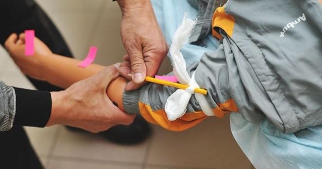 Оказания Первой Помощи При Артериальном Кровотечении