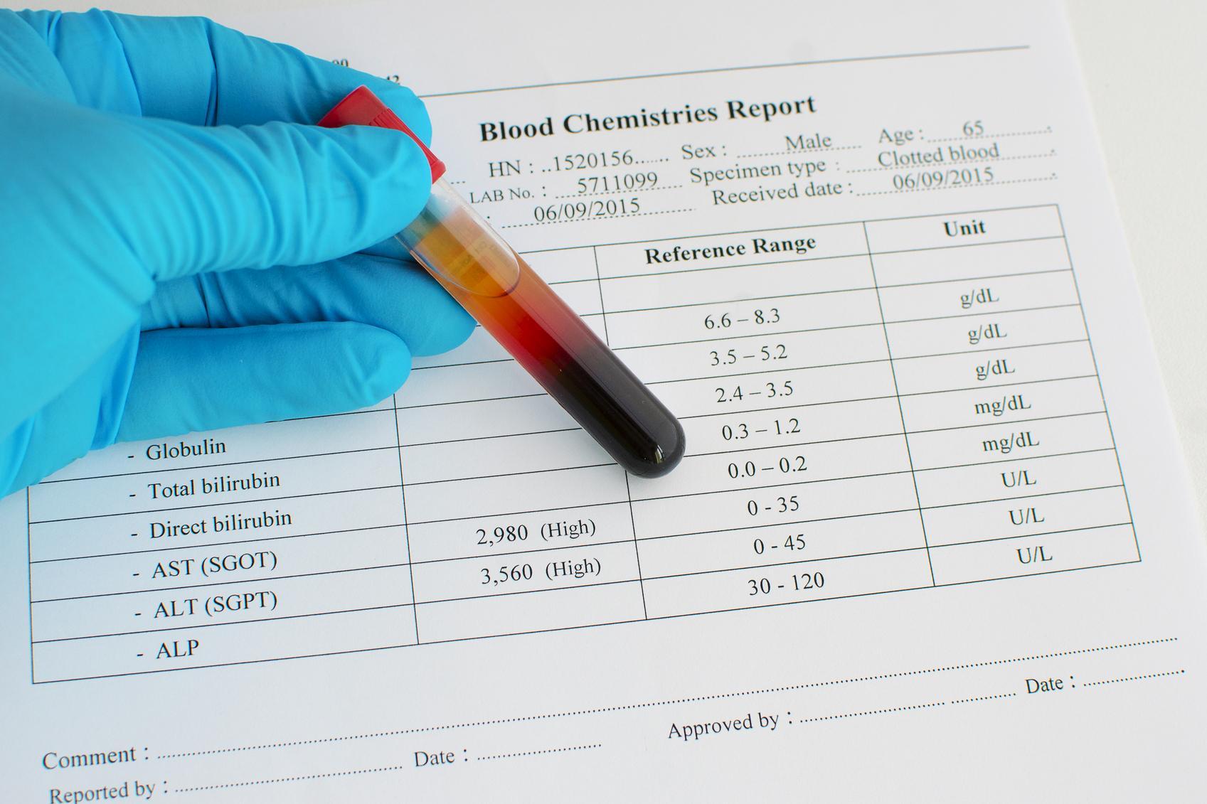 Трансаминаза В Крови