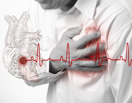 Диастолическая дисфункция левого желудочка