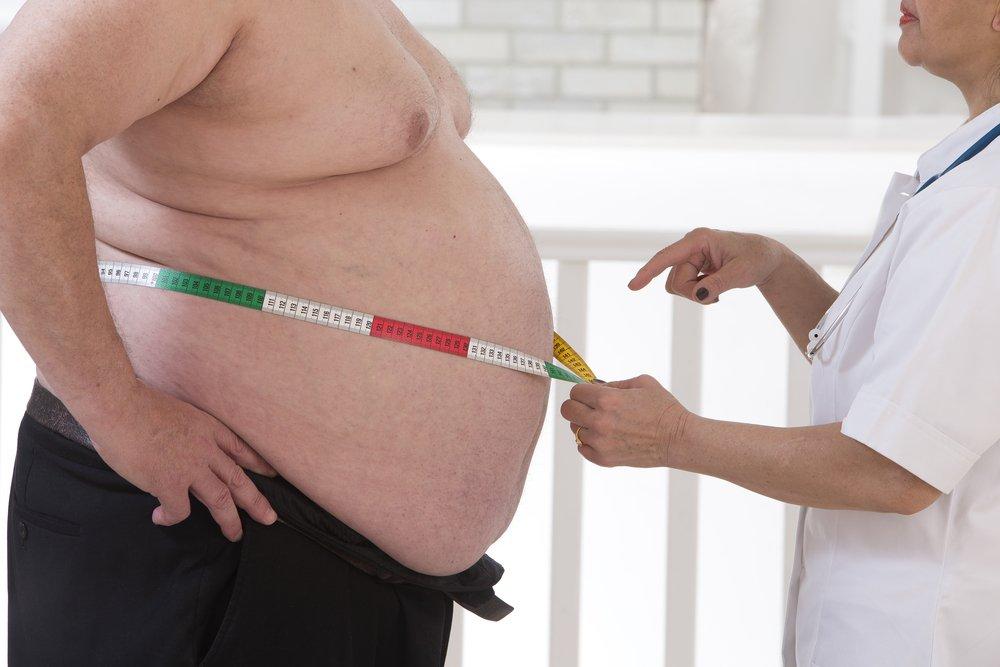 Ожирение - фактор риска