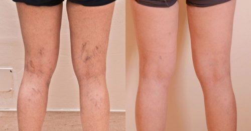 sklerozirovanie-sosudov-nog