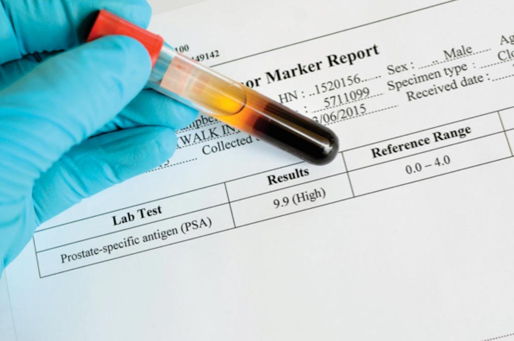 тест крови на онкомаркеры