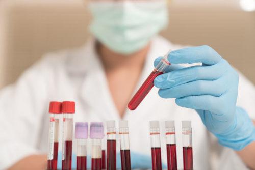 как определить анемию