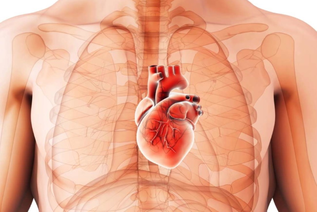 Kardiomegaliya serdce