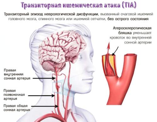 Transient-cerebral-ischemia