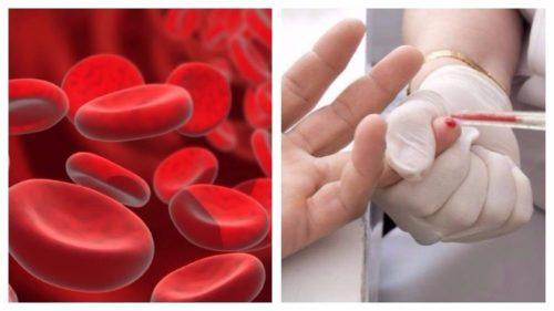 Пониженный гемоглобин и повышенное соэ что это