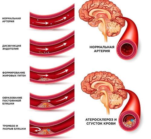 cerebral-nyy-aterosklero