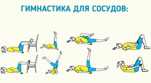 gym-varikoz-sosudy