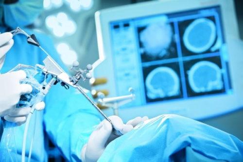 hirurgija mozga