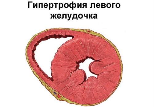 klinicheskaya_kartina_zabolevaniya