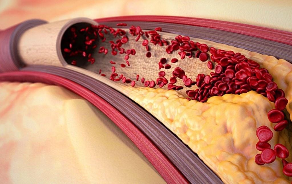 отчистить сосуды от холестерина