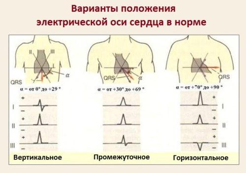 ehlektricheskaya-os-serdca