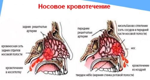 nosovoe-krovotecjenie
