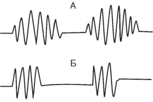 Патологические шумы при прослушивании