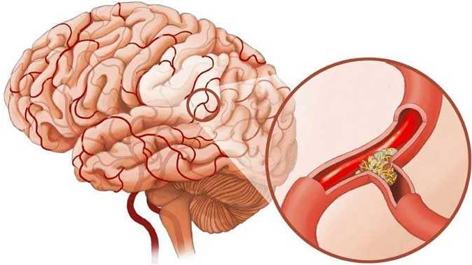 skleroz-sosudov-golovnogo-mozga