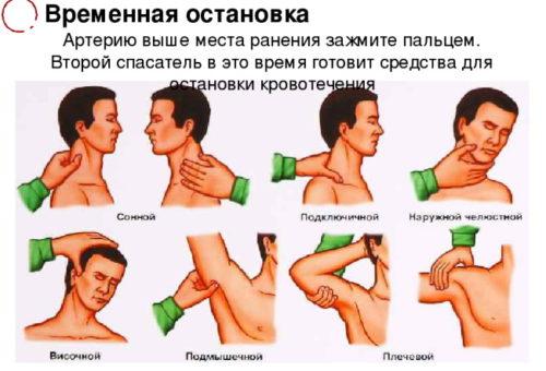 vidy_i_sposoby_ostanovki_krovotecheniy