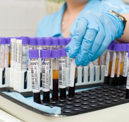 Клинический анализ крови при раке