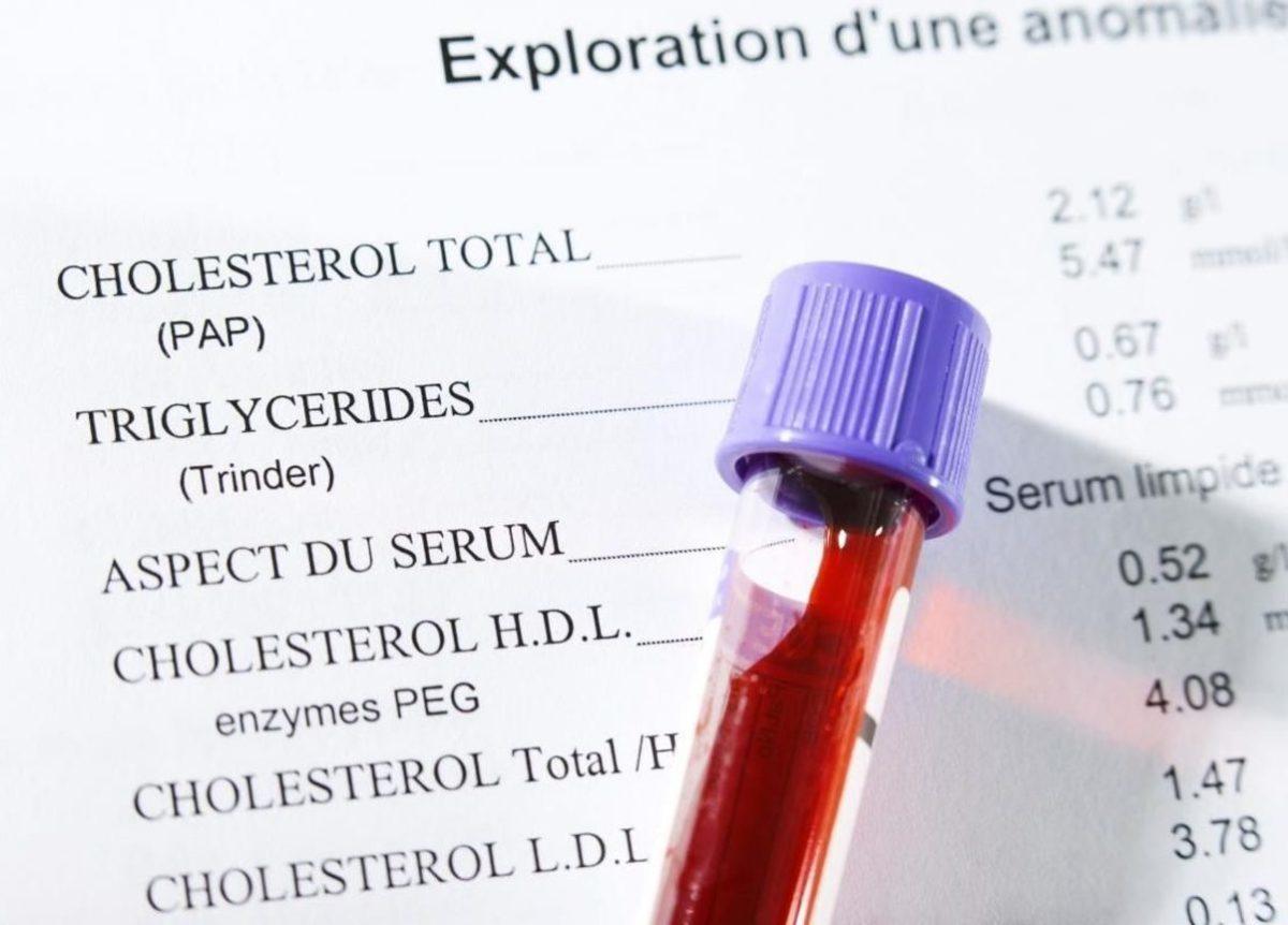 Липидный спектр в биохимическом анализе крови