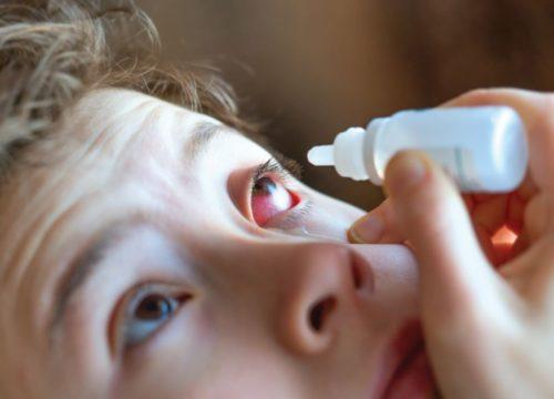 кровоизлияния в глазу