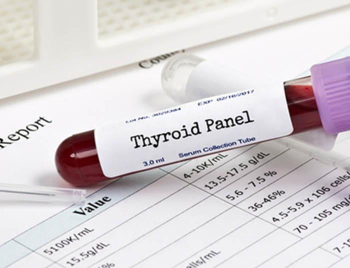 Какие гормоны щитовидной железы нужно сдавать женщине