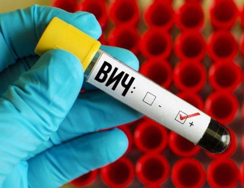 ВИЧ инфекции