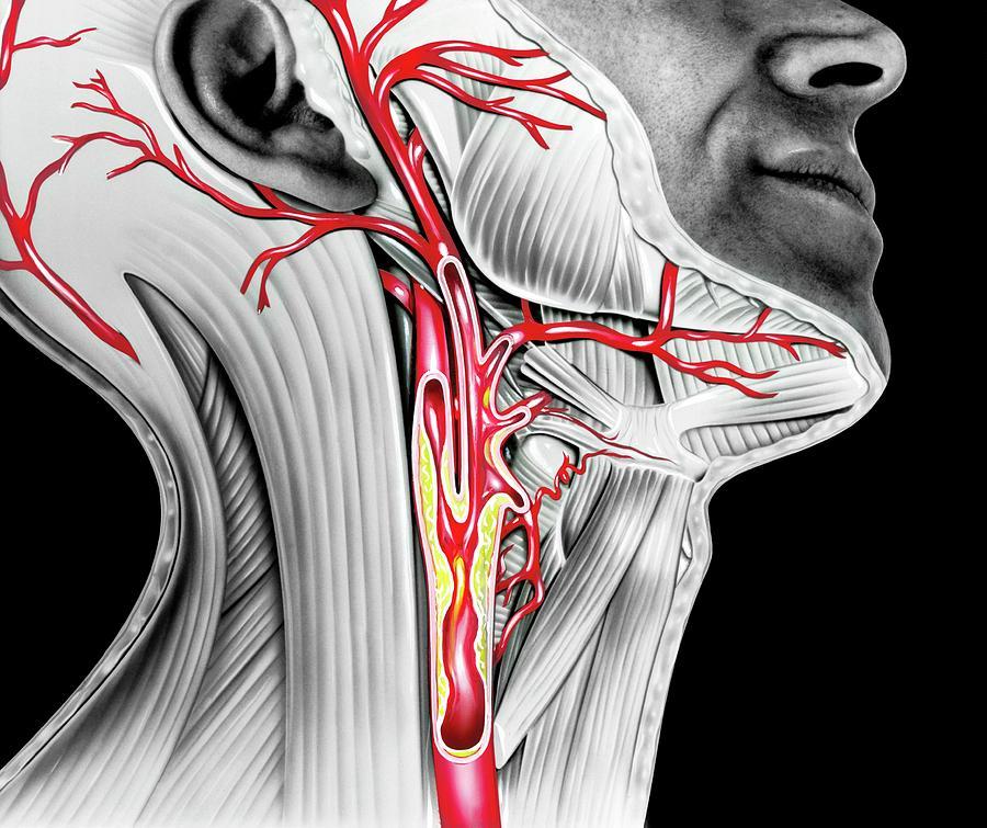 Анатомия кровеносных сосудов шеи