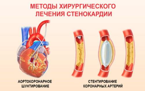 hirurgija-stenokardii