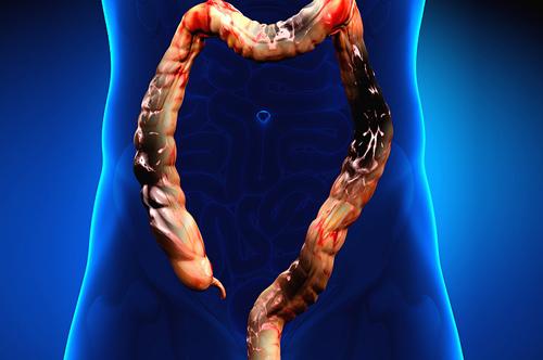Некроз кишечника