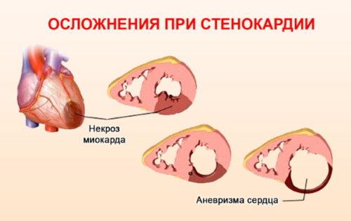 stenokardiya oslozhnenija