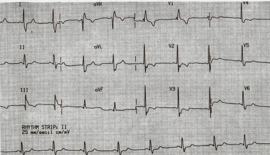 Как прочитать кардиограмму сердца