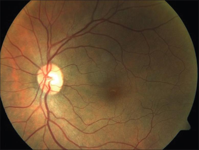 Что такое гипертоническая ангиопатия сетчатки глаза