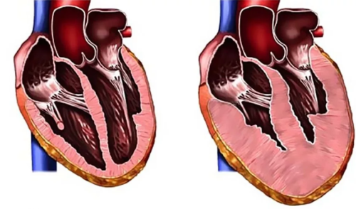 Увеличение объема сердца
