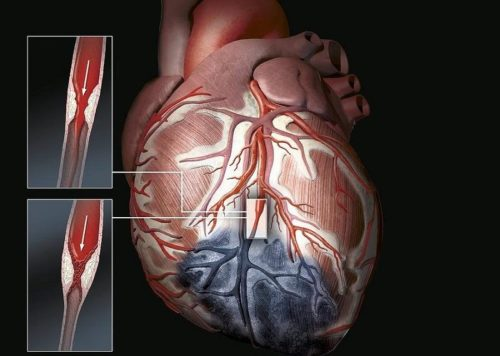 Атеросклеротический