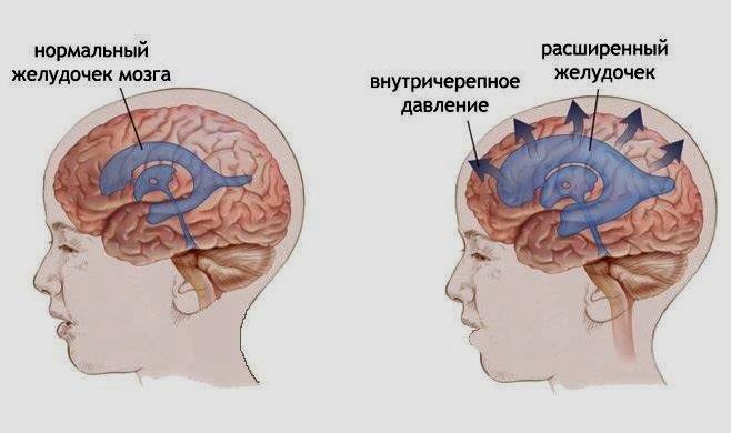 Внутреннее черепное давление симптомы лечение