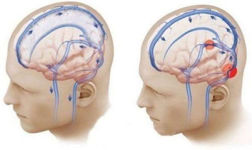 sosudistyj kriz mozga