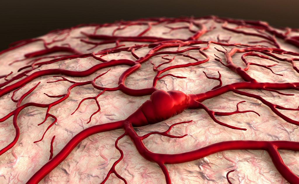 Что такое венозная дисциркуляция