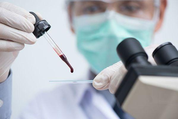 Определение резус фактора крови