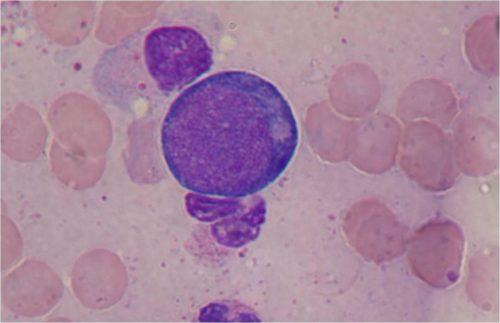 Полихроматофильный нормобласт