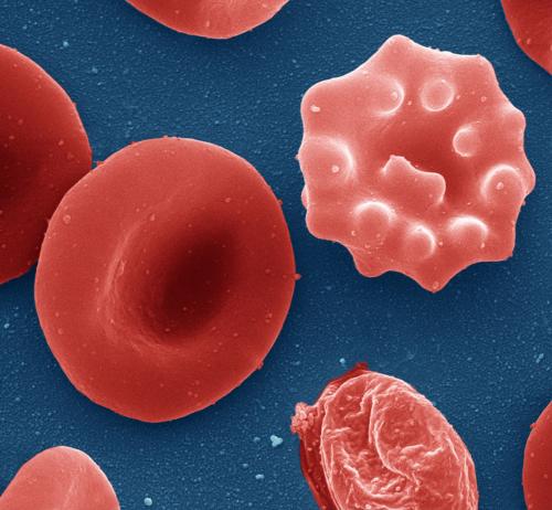 клетки, отличающиеся от стандартной формы