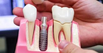 Что такое имплантация зубов и как она делается